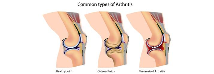 Chiropractic Redondo Beach CA Arthritis