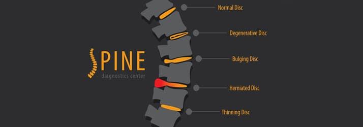 Chiropractic Redondo Beach CA Degenerative Disc Disease